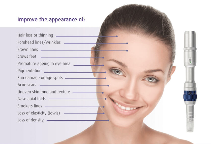 Skin Needling & Tightening | Mouda Laser & Skin Clinic Wentworthville