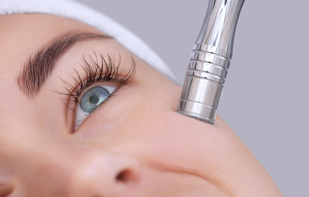 Everything You Need to Know About Microdermabrasion Treatment | Mouda Laser & Skin Clinic