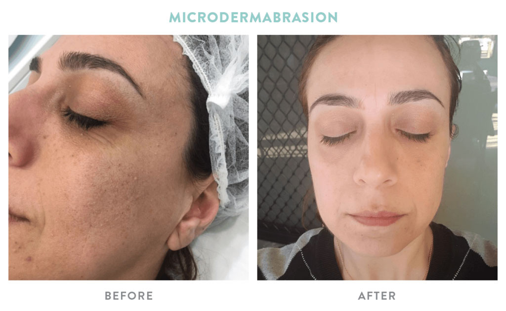 The Many Benefits of Microdermabrasion | Mouda Laser & Skin Clinic