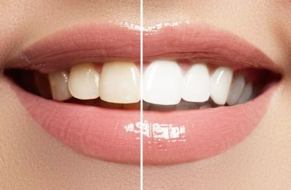 Thinking About Teeth Whitening | Mouda Laser & Skin Clinic